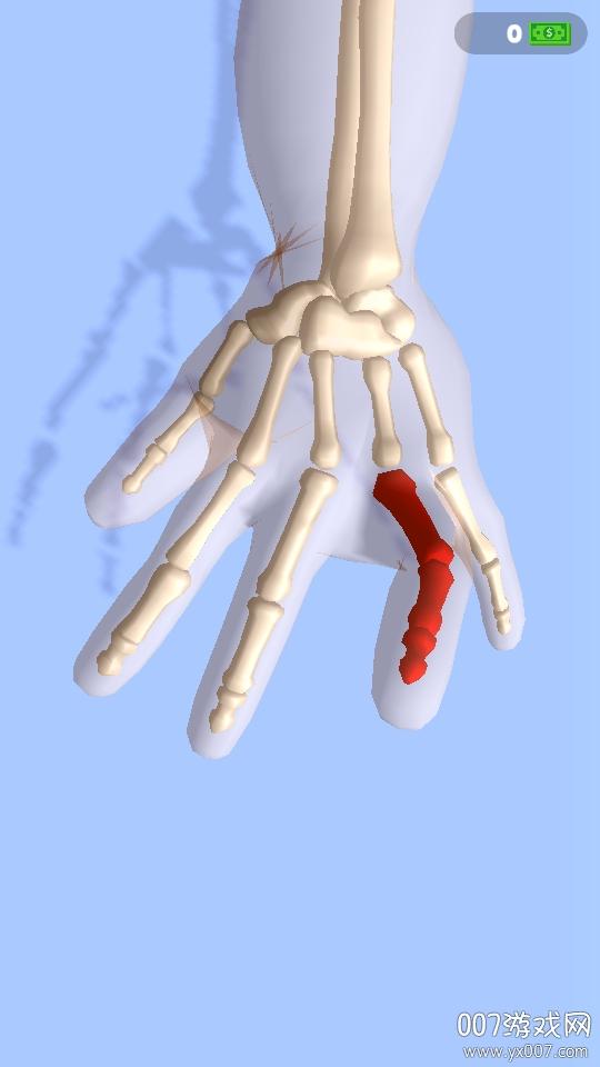 正骨老中医模拟脱臼正骨单机版v1.0 最新版