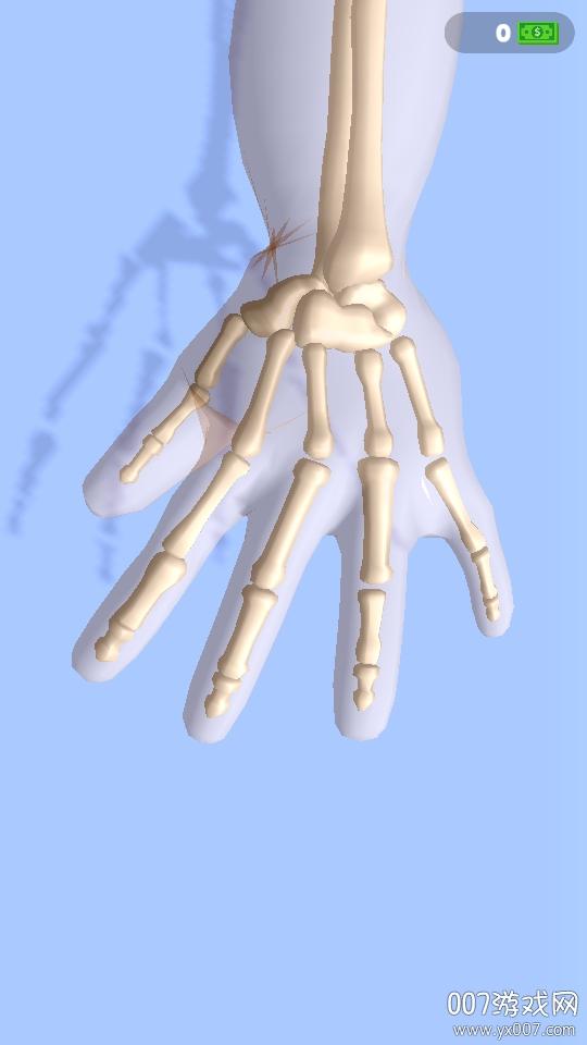 正骨老中医模拟脱臼正骨单机版
